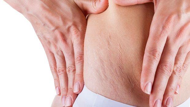 vitamina E para a pele - apaga as estrias teimosos