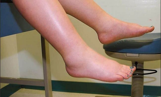15 Melhores remédios caseiros para pés inchados
