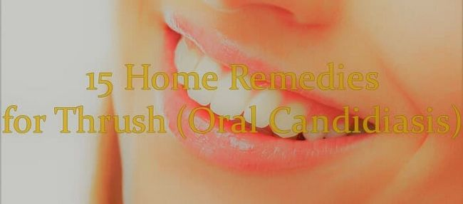 15 Remédios caseiros eficazes para aftas (candidíase oral)