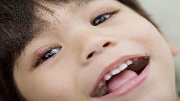 5 Home remédios para chiqueiros na pálpebra em crianças