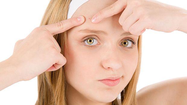 6 Home remédios para espinhas no rosto e no nariz