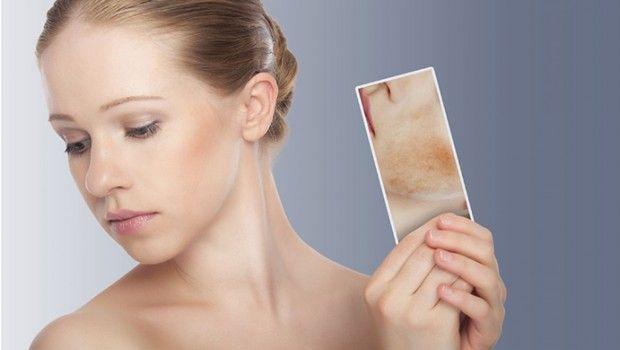 6 Remédios caseiros naturais para erupções na pele
