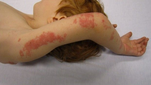 Remédios 9 início de sintomas telhas: a dor e coceira