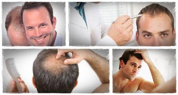 maneiras naturais para cabelos crescerem como naturalmente regredir cabelo perdido em 15 minutos por dia 2